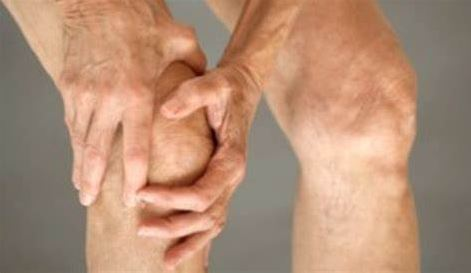 Control arthritis