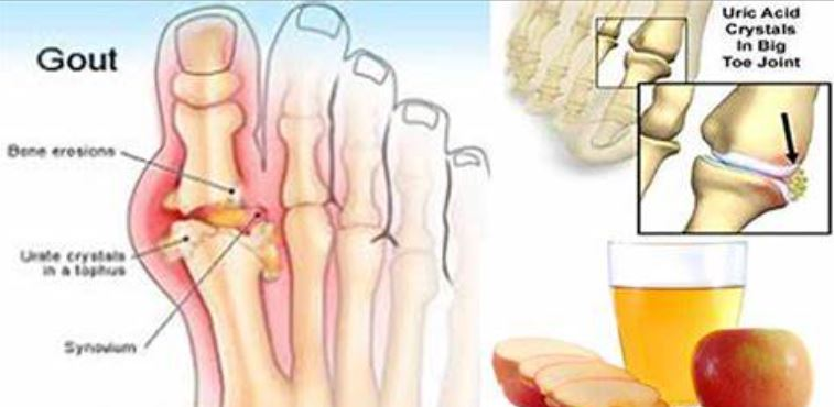 Uric acid and joints pain